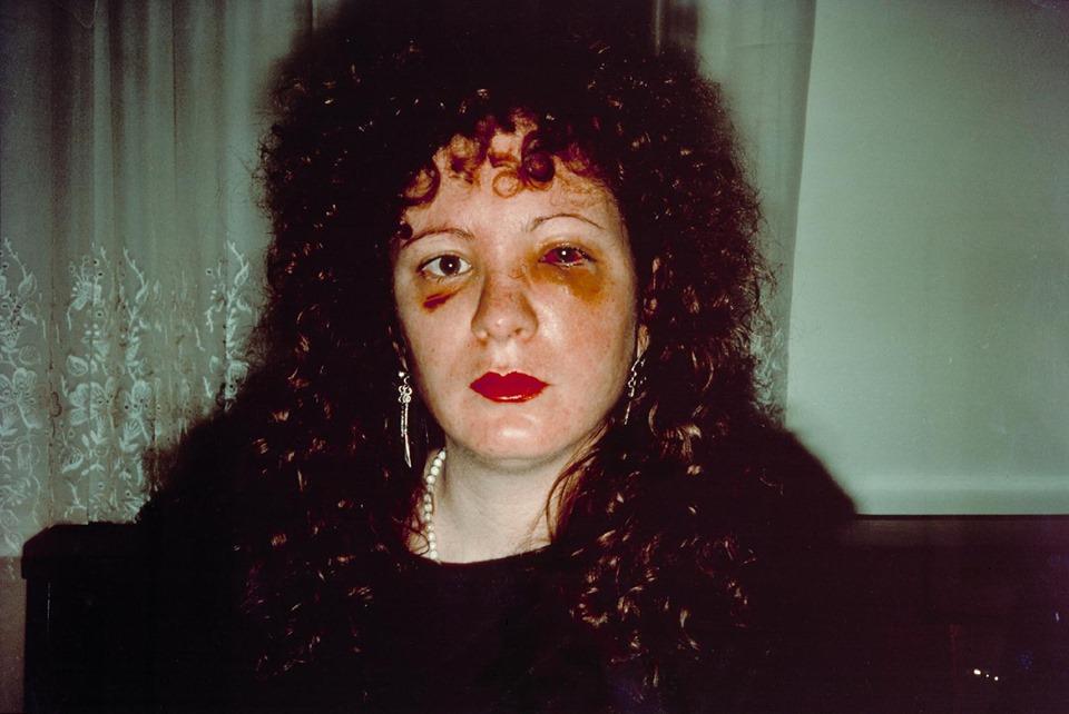 Un mes después de ser golpeada, 1984. Nan Goldin.